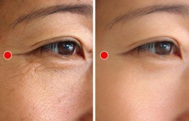 Học ngay bài tập 1 phút của người Nhật để xóa nếp nhăn quanh mắt